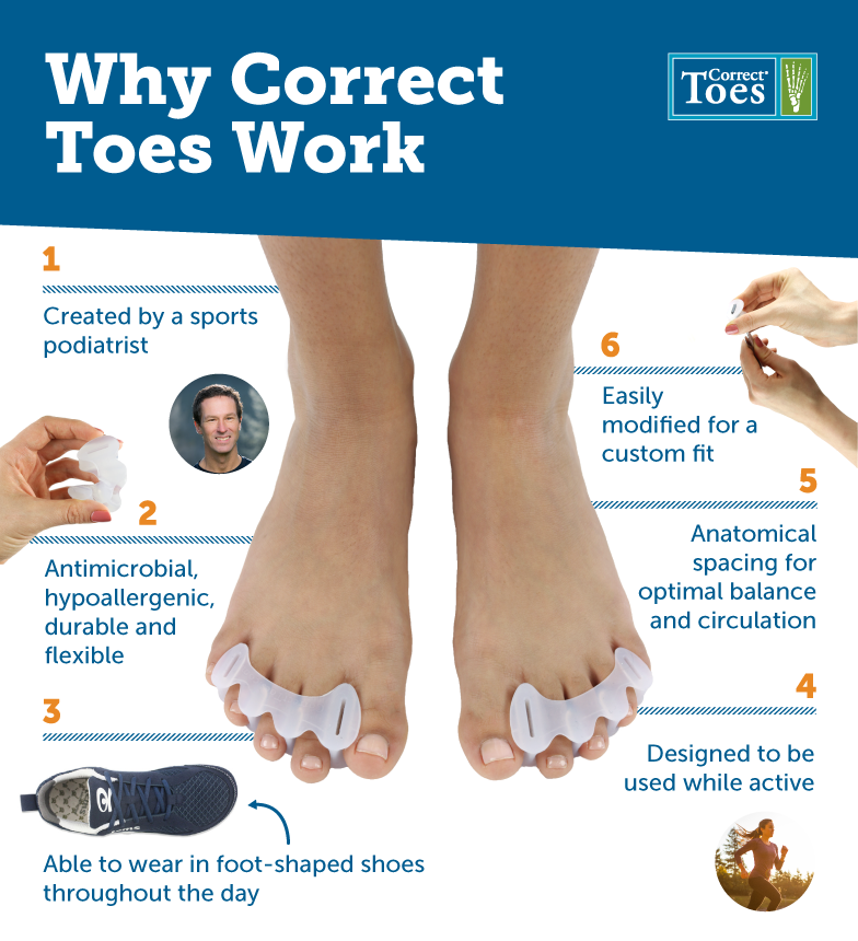Image result for correct toes before and after